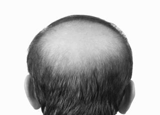 bald glaze 1 - Behandlung von Haarausfall
