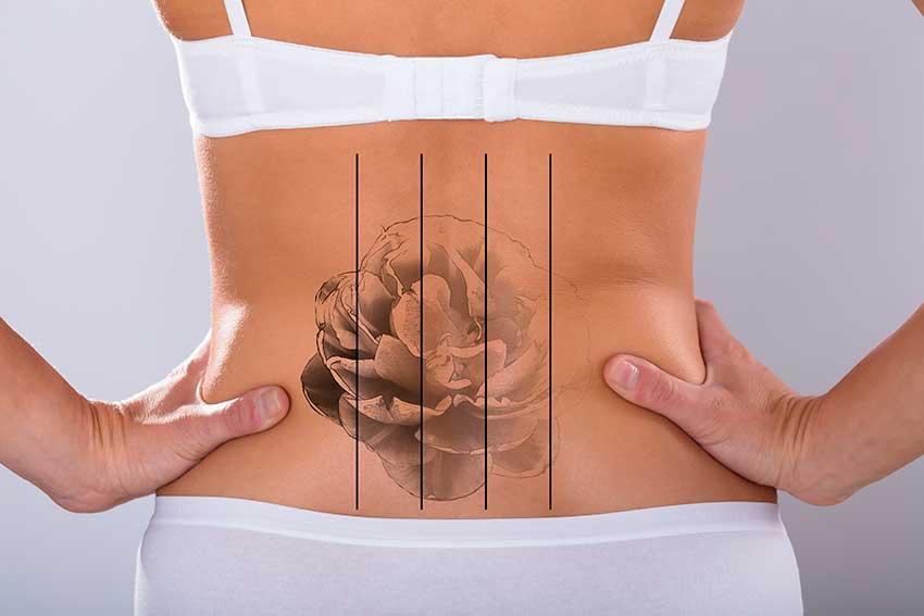 tattooentfernung - Tattooentfernung mit Plasmatechnologie