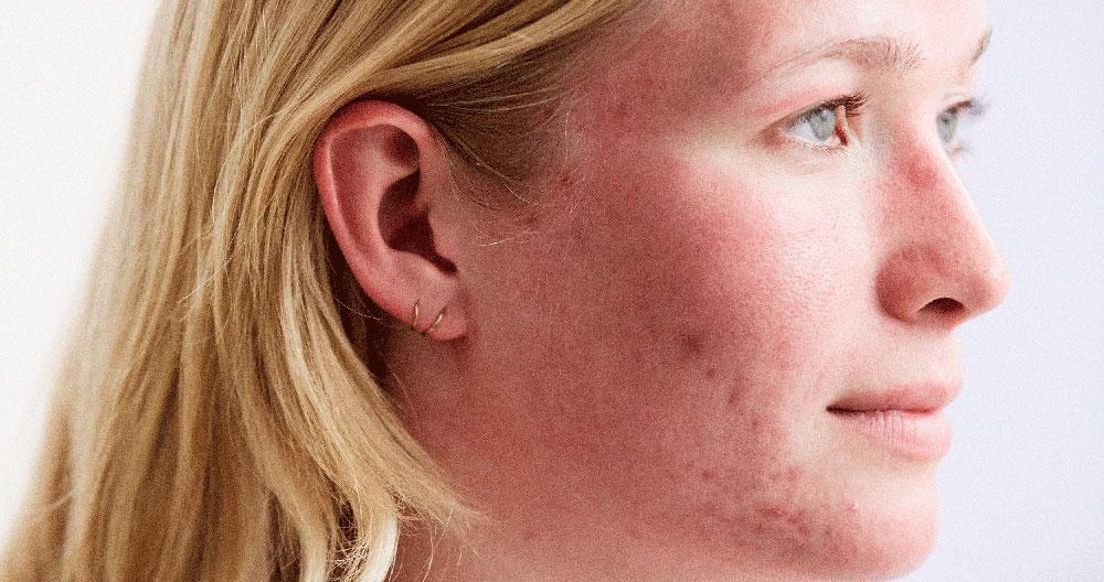 Kleresca Akne Patientin - Nicht-invasive biophotonische Gesichtsbehandlung