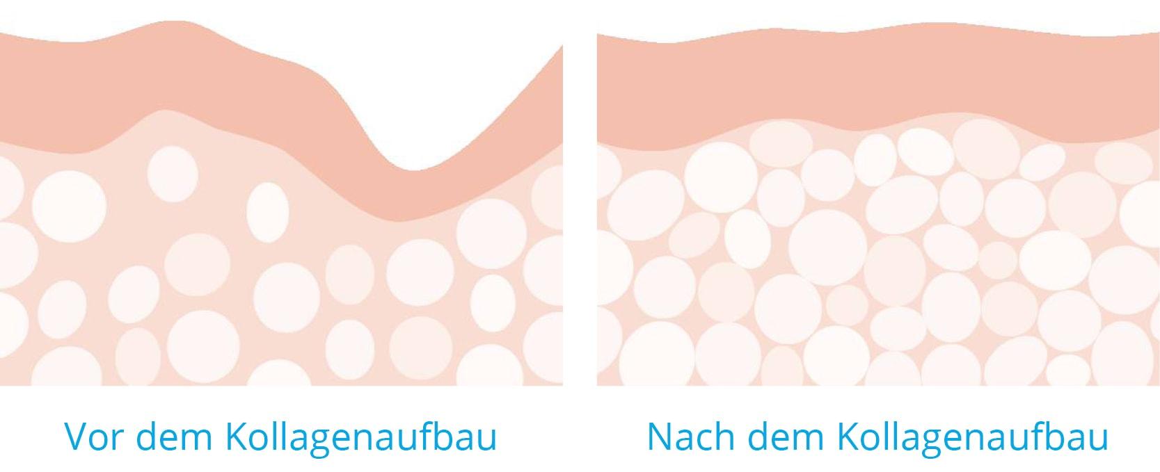 VorherNachher - Nicht-invasive biophotonische Gesichtsbehandlung