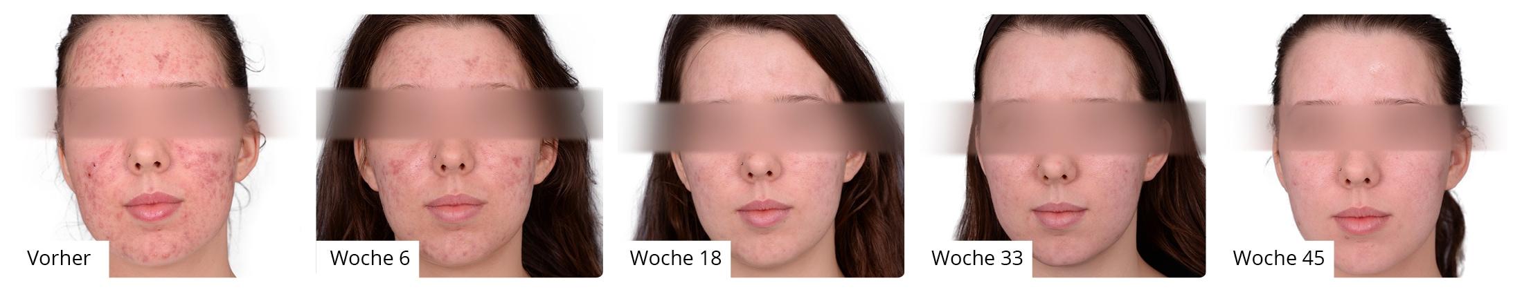 Vorher Nachher Patient 6 - Aknebehandlung - Vorher-/Nachherbilder