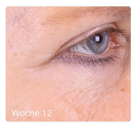 Nachherbilder Hautverjüngung 1 - Nicht-invasive biophotonische Behandlung zur Hautverjüngung - Nachherbilder
