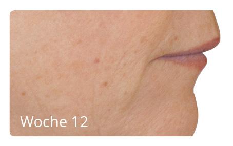 Nachherbilder Hautverjüngung 2 - Nicht-invasive biophotonische Behandlung zur Hautverjüngung - Nachherbilder