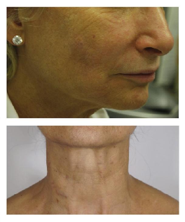 Hydral Ergebnisse - Eine neue Generation von Skinboostern