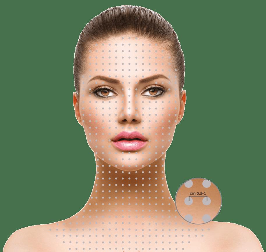 Hydryal Anwendungsbereiche - Eine neue Generation von Skinboostern