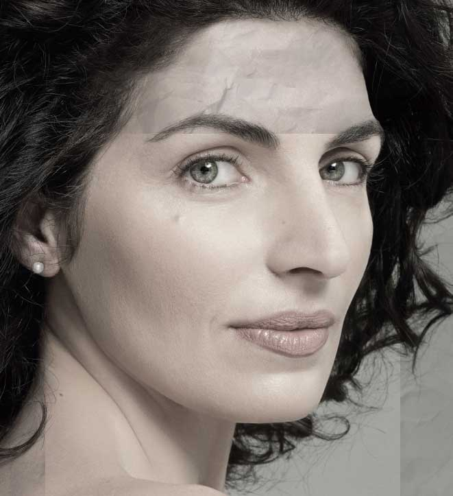 profhilo - Eine neue Generation von Skinboostern