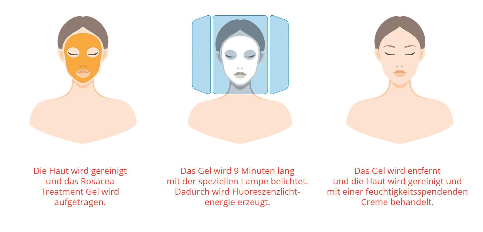 Ablauf Behandlung Rosacea - Nicht-invasive biophotonische Gesichtsbehandlung