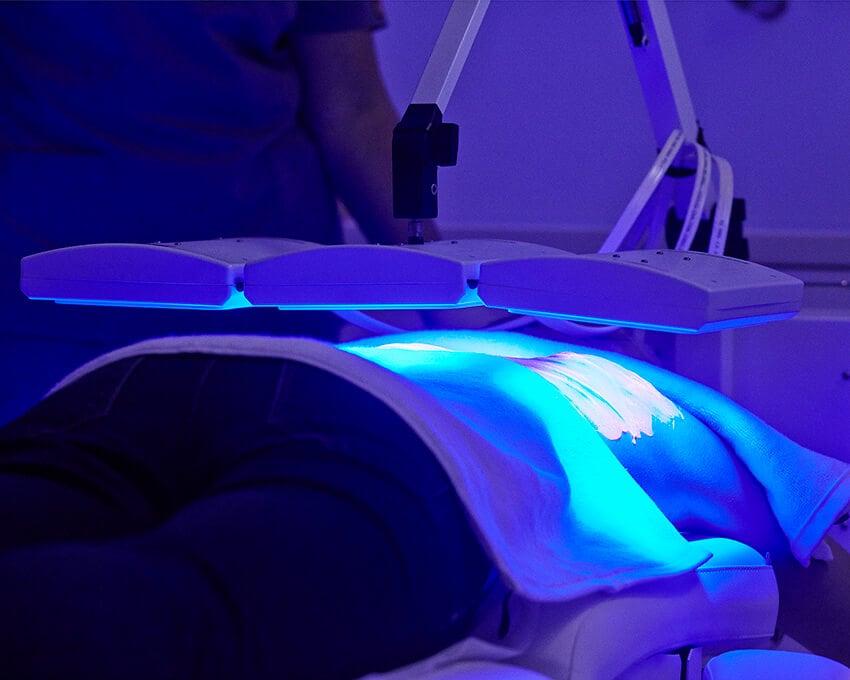 Biophotonische Behandlung Ruecken - Nicht-invasive biophotonische Gesichtsbehandlung