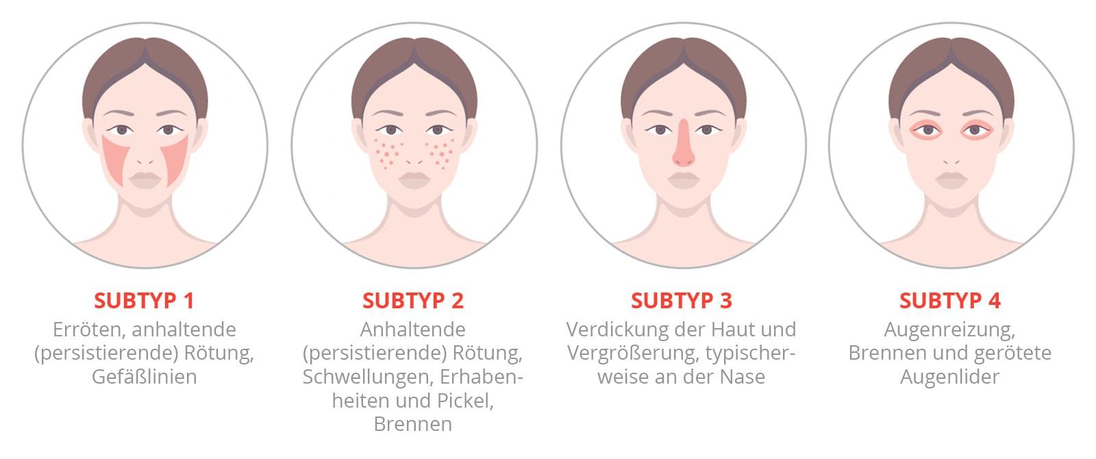 Rosacea Subtypen - Nicht-invasive biophotonische Gesichtsbehandlung