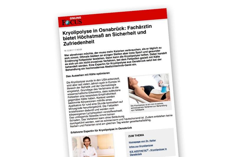 Ein Artikel zum Thema Kryolipolyse auf Focus Online
