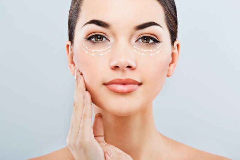 Behandlung Tränensäcke - Monopolares Radiofrequenz-Microneedling