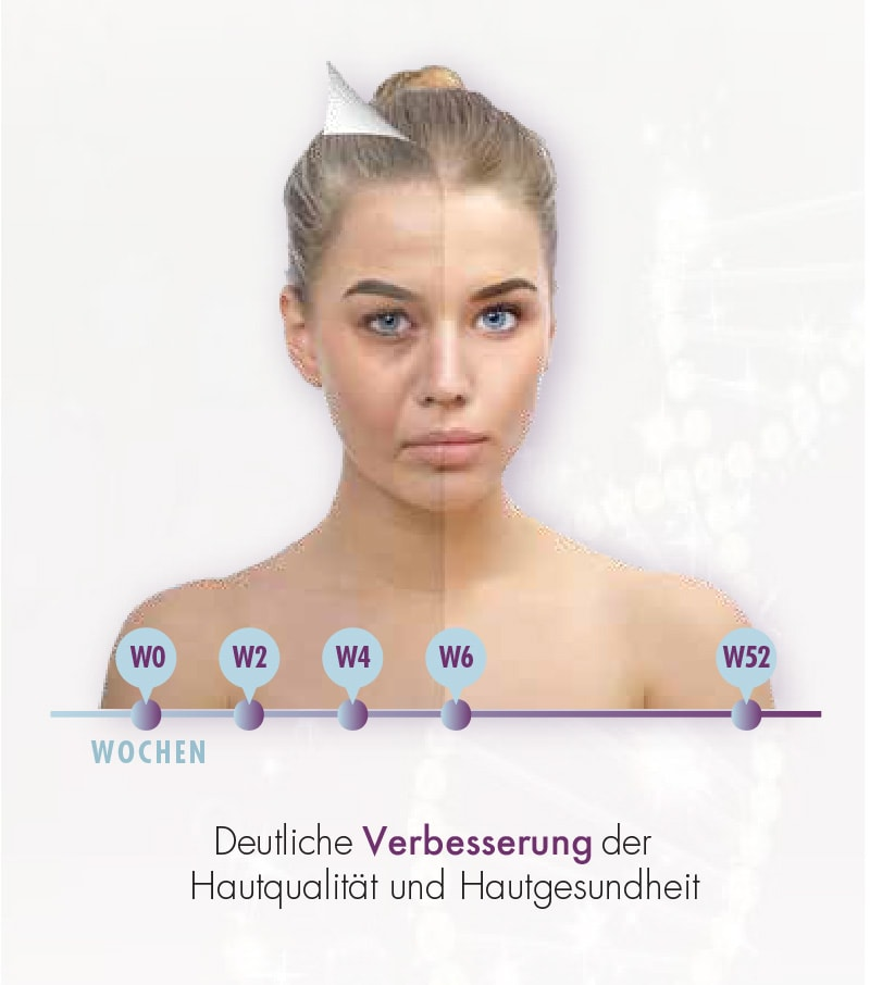 Hautgesundheit - Eigenbluttherapie mit Exokine als Beauty Activator