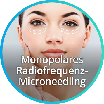 Sidebar Logo Microneedling - Straffung der oberen und unteren Augenlider mit Plasmatechnologie