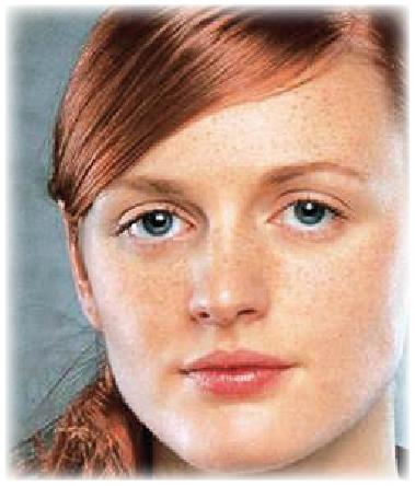 Hauttyp 1 - COSMELAN – Die Depigmentationsbehandlung