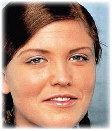 Hauttyp 3 - COSMELAN – Die Depigmentationsbehandlung