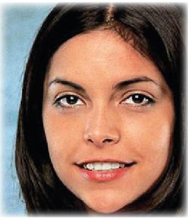 Hauttyp 5 - COSMELAN – Die Depigmentationsbehandlung