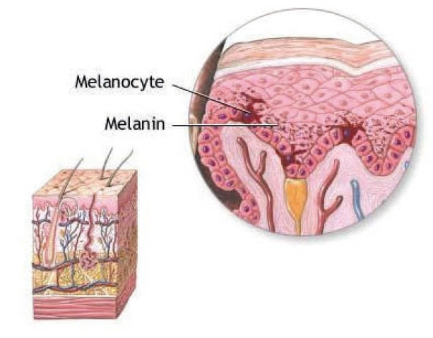 Melanozyten Melanin - COSMELAN – Die Depigmentationsbehandlung