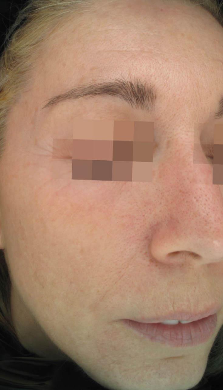 cosmelan result 1 - COSMELAN – Die Depigmentationsbehandlung