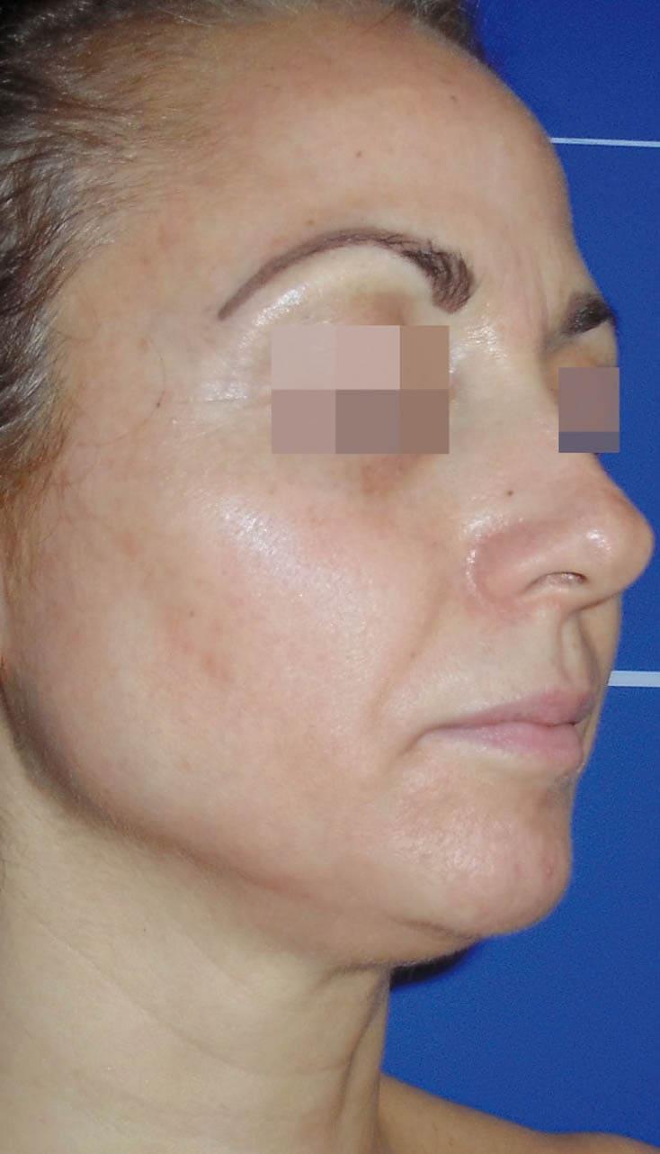 cosmelan result 2 - COSMELAN – Die Depigmentationsbehandlung