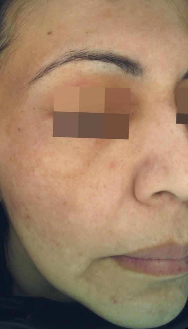 cosmelan result 3 - COSMELAN – Die Depigmentationsbehandlung