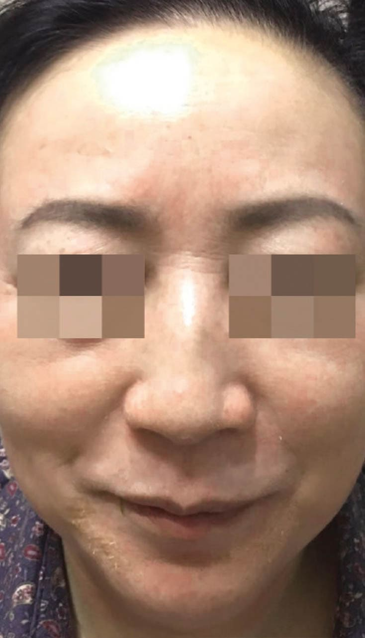 cosmelan result 4 - COSMELAN – Die Depigmentationsbehandlung