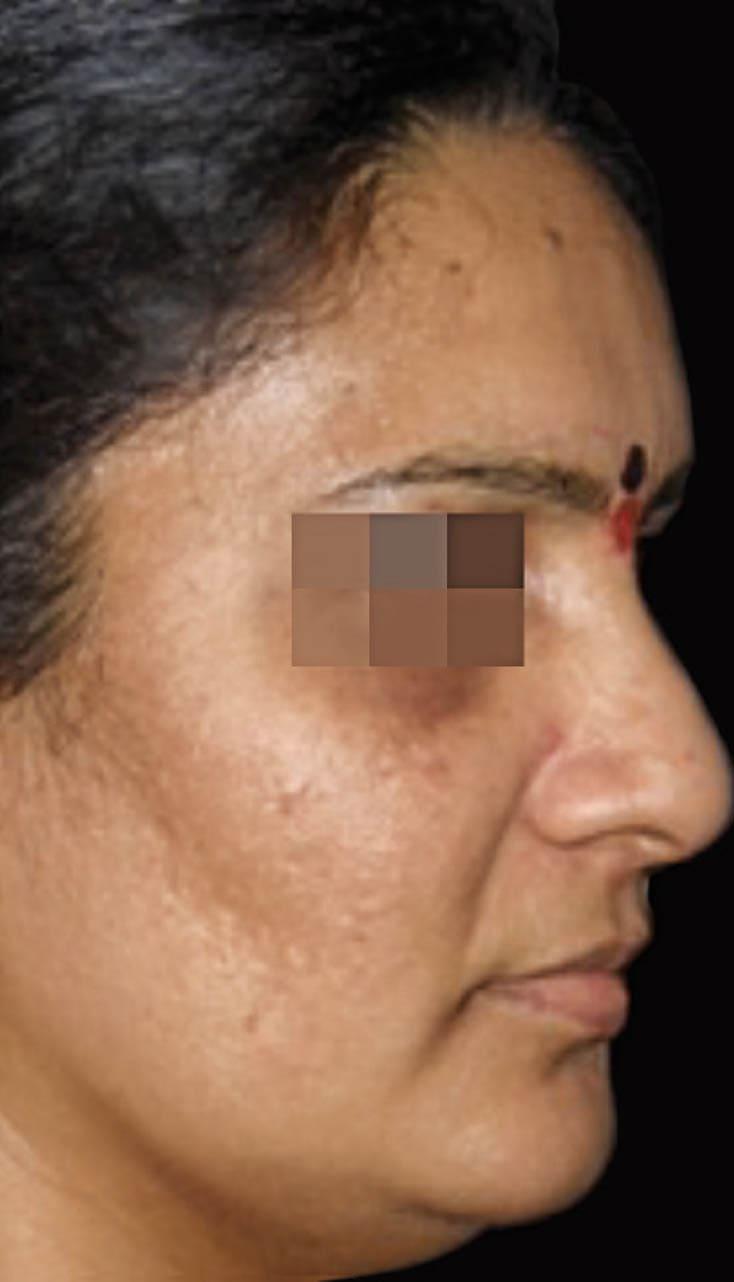cosmelan result 5 - COSMELAN – Die Depigmentationsbehandlung