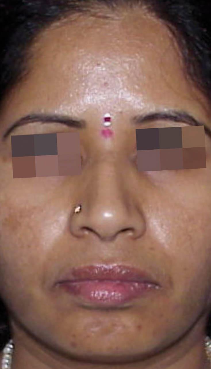 cosmelan result 6 - COSMELAN – Die Depigmentationsbehandlung
