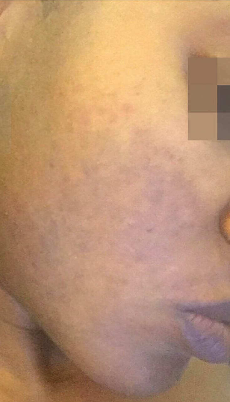 cosmelan result 7 - COSMELAN – Die Depigmentationsbehandlung
