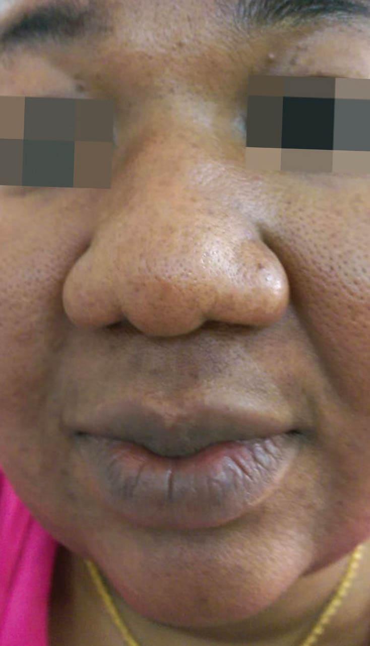 cosmelan result 8 - COSMELAN – Die Depigmentationsbehandlung